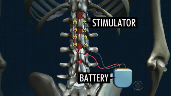 epiduralna-stimulacija