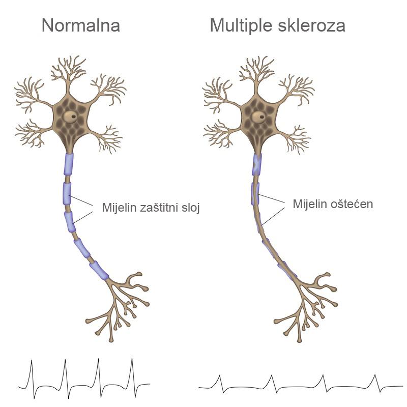 Multiple Skleroza