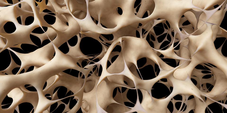 Osteoporoza i povreda kičmene moždine